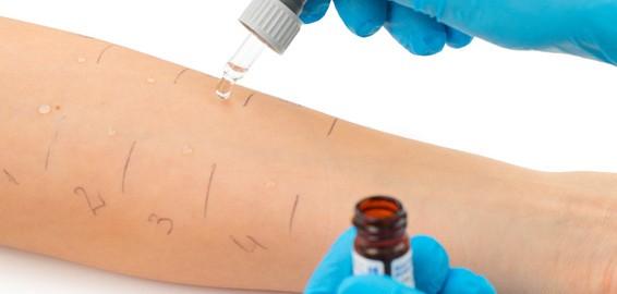 allergologia-4-1.jpg